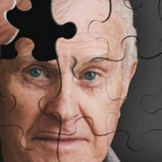 demencia-alzheimer-neurologo